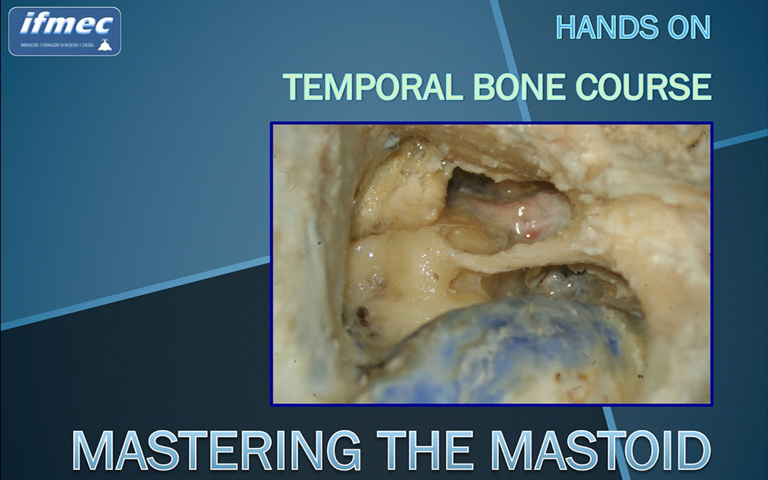 Mastering the Mastoid